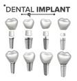 dental implant set dental clinic vector image vector image