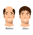 men thinning hair treatment before and after vector image vector image