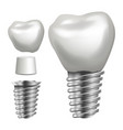 dental implant side view graphic design vector image