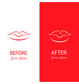 lips reshaping before and after surgery abstract vector image vector image