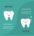 before after infographic healthy smiling tooth vector image