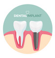 dental implant placard with title on vector image