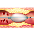 Stent vector image