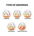 types of seborrhea seborrhea skin and hair vector image