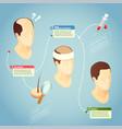 hair transplantation vector image vector image