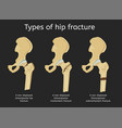 types of hip fracture vector image