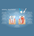 dental treatment diagram education medical vector image vector image