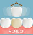 dental veneers tooth anatomy vector image vector image