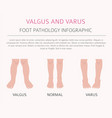 foot deformation as medical desease infographic vector image