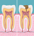 Carious human tooth cross section vector image vector image