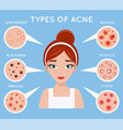 face acne women skin cosmetic care pimple problem vector image