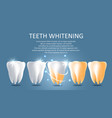 teeth whitening medical poster banner vector image vector image