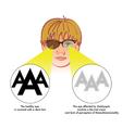 amblyopia vector image