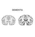 dementia alzheimer s disease pathogenesis vector image vector image