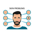male face skin problems vector image vector image
