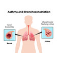 asthma medical poster vector image vector image