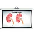 Diagram showing kidney stones vector image vector image
