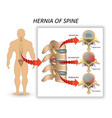 anatomy medical diagram of a human spine vector image vector image