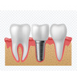tooth implant human teeth and dental implant vector image