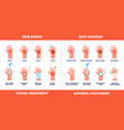 skin first aid burns treatment wounds and trauma vector image