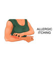 allergic skin itching vector image vector image