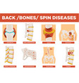 back bones and human spin diseases explanation vector image