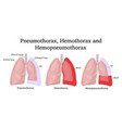 pneumothorax hemothorax and hemopneumothorax vector image