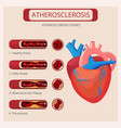 atherosclerosis stages heart strokes thrombus vector image
