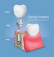 human teeth and dental implant vector image