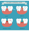 The stages of periodontal disease vector image vector image