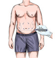 hand plastic surgery drawing marks on male body vector image