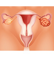 Ovarian cancer in woman vector image vector image