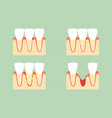 Step of periodontal disease or gingivitis
