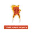 envolvement of pulp dental disease mouth cavity vector image vector image