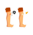 bleeding wound on knee sticking plaster vector image vector image